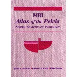 Mri Atlas of the Pelvis Normal Anatomy and Pathology
